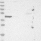 Western-Blot-LASS3-Antibody-NBP1-84535-Lane-1-Marker-kDa-230-130-95-72-56-36-28-17-11-Lane-2-RT-4-Lane-3-U-251-MG-Lane-4-Human-Plasma-Lane-5-Liver-Lane-6-Tonsil
