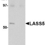 Western-Blot-Lass5-Antibody-NBP1-77328-SK-N-SH-lysate-with-LASS5-antibody-at-1-ug-ml-in-the-A-absence-and-B-presence-of-blocking-peptide-
