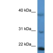 Western-Blot-IMMP2L-Antibody-NBP1-79838-HepG2-cell-lysate-concentration-0-2-1-ug-ml-