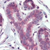 Immunohistochemistry-Paraffin-IMPDH1-Antibody-NBP1-52401-Staining-of-human-breast-Immunohistochemistry-of-formalin-fixed-paraffin-embedded-tissue-after-heat-induced-antigen-retrieval-Antibody-