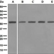 Western-Blot-Lipoamide-Dehydrogenase-Antibody-EPR6635-NBP1-96716-A-Jurkat-B-HeLa-C-293T-D-MCF-7-and-E-Caco-2-cell-lysates-