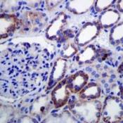 Immunohistochemistry-Paraffin-Lipoamide-Dehydrogenase-Antibody-EPR6635-NBP1-96716-DLD-