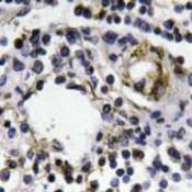 Immunohistochemistry-Paraffin-Interferon-gamma-Antibody-NBP1-19761-Paraffin-embedded-human-lymph-node-tissue-