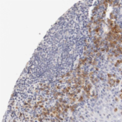 Immunohistochemistry-Paraffin-LAX1-Antibody-NBP1-83661-Staining-of-human-tonsil-shows-moderate-cytoplasmic-positivity-in-lymphoid-cells-outside-reaction-center-