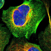 Immunocytochemistry-Immunofluorescence-LAX1-Antibody-NBP1-83661-Staining-of-human-cell-line-U-2-OS-shows-positivity-in-plasma-membrane-cytoplasm-