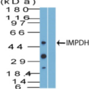 Western-Blot-IMPDH2-Antibody-NBP2-27195-analysis-of-IMPDH-using-IMPDH-antibody-Jurkat-cell-lysate-in-the-1-absence-and-2-presence-of-immunizing-peptide-probed-with-2-ug-ml-of-IMPDH-antibody-I
