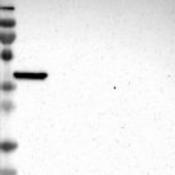 Western-Blot-MOGAT3-Antibody-NBP1-84299-Lane-1-Marker-kDa-230-130-95-72-56-36-28-17-11-Lane-2-RT-4-Lane-3-U-251-MG-Lane-4-Human-Plasma-Lane-5-Liver-Lane-6-Tonsil
