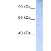 Western-Blot-IMPG2-Antibody-NBP1-62656-293T-cells-lysate-concentration-0-2-1-ug-ml-