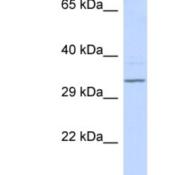 Western-Blot-RFPL4B-Antibody-NBP1-55032-293T-cells-lysate-concentration-0-2-1-ug-ml-