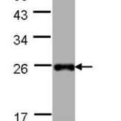 Western-Blot-LITAF-Antibody-NBP1-32726-30-ug-of-whole-cell-lysate-A-Hep-G2-12-SDS-PAGE-diluted-at-1-1000