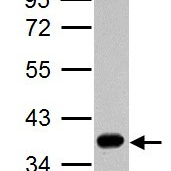 Western-Blot-liver-Arginase-Antibody-NBP1-32731-A-30-ug-HepG2-whole-cell-lysate-extract-10-SDS-PAGE-gel-antibody-dilution-1-1000-
