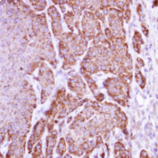 Immunohistochemistry-Paraffin-liver-Arginase-Antibody-NBP1-32731-Paraffin-embedded-Cal27-xenograft-using-antibody-at-1-500-dilution-