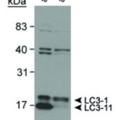 Western-Blot-LC3-Antibody-HRP-NB100-2220H-Detection-of-LC3-in-mouse-ES-cell-lysates-using-NB-100-2220-Atg5-ES-cells-from-Dr-Noboru-Mizushima-Mizushima-N-et-al-J-Cell-Biol-152-2001-