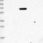 Western-Blot-MASP2-Antibody-NBP1-81259-Lane-1-Marker-kDa-230-130-95-72-56-36-28-17-11-Lane-2-RT-4-Lane-3-U-251-MG-Lane-4-Human-Plasma-Lane-5-Liver-Lane-6-Tonsil