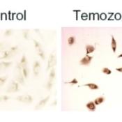 Immunohistochemistry-LC3B-Antibody-Biotin-NB600-1384B-Staining-of-treated-U373-MG-human-glioblastoma-cells-using-NB600-1384-