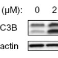 Western-Blot-LC3B-Antibody-Biotin-NB600-1384B-Detection-of-LC3B-in-treated-U87-MG-human-glioblastoma-astrocytoma-lysates-using-NB600-1384-