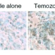 Immunohistochemistry-LC3B-Antibody-Biotin-NB600-1384B-LC3B-staining-in-treated-U87-MG-cultured-subcutaneous-tumors-using-NB600-1384-
