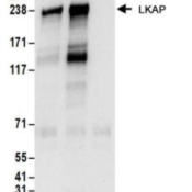 Immunoprecipitation-LKAP-Antibody-NBP2-22257-Whole-cell-lysate-1-mg-for-IP-20-of-IP-loaded-from-Jurkat-cells-Antibodies-NBP2-22257-used-for-IP-at-6-ug-mg-lysate-Limkain-b1-was-also-immu