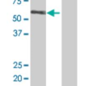 Western-Blot-RGL4-Antibody-H00266747-B01P-analysis-of-Rgr-expression-in-transfected-293T-cell-line-by-Rgr-MaxPab-polyclonal-antibody-Lane-1-Rgr-transfected-lysate-45-1-KDa-Lane-2-Non-transf