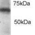 Western-Blot-RGS14-Antibody-NB100-1431-0-5ug-ml-of-Jurkat-lysate-RIPA-buffer-35ug-total-protein-per-lane-Primary-incubated-for-1-hour-Detected-by-western-blot-using-chemiluminescence-