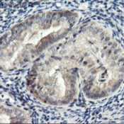 Immunohistochemistry-Paraffin-RGS16-Antibody-1F3-NBP2-01547-Staining-of-paraffin-embedded-Adenocarcinoma-of-Human-endometrium-tissue-using-anti-RGS16-mouse-monoclonal-antibody-