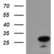 Western-Blot-RGS16-Antibody-1F3-NBP2-01547-HEK293T-cells-were-transfected-with-the-pCMV6-ENTRY-control-Left-lane-or-pCMV6-ENTRY-RGS16-Right-lane-cDNA-for-48-hrs-and-lysed-Equivalent-amount