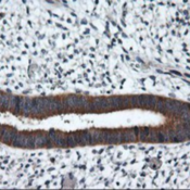 Immunohistochemistry-Paraffin-RGS16-Antibody-1F3-NBP2-01547-Staining-of-paraffin-embedded-Human-endometrium-tissue-using-anti-RGS16-mouse-monoclonal-antibody-