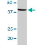 Western-Blot-MOS-Antibody-H00004342-D01P-MOS-MaxPab-rabbit-polyclonal-antibody-Western-Blot-analysis-of-MOS-expression-in-human-pancreas-