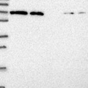 Western-Blot-MPG1-Antibody-NBP2-14246-Lane-1-Marker-kDa-250-130-95-72-55-36-28-17-10-Lane-2-RT-4-Lane-3-U-251-MG-Lane-4-Human-Plasma-Lane-5-Liver-Lane-6-Tonsil