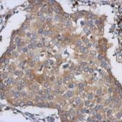 Immunohistochemistry-Paraffin-LMAN1-Antibody-NBP2-19366-Immunohistochemical-analysis-of-paraffin-embedded-Breast-ca-using-antibody-at-1-500-dilution-