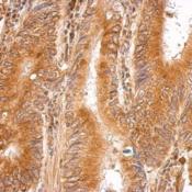 Immunohistochemistry-Paraffin-LMAN1-Antibody-NBP2-19366-LMAN1-antibody-N1C1-detects-LMAN1-protein-at-cytosol-on-gastric-carcinoma-by-immunohistochemical-analysis-Sample-Paraffin-embedded-gast