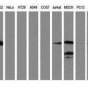 Western-Blot-LMAN1-Antibody-1E3-NBP2-03382-Analysis-of-extracts-35ug-from-9-different-cell-lines-by-using-anti-LMAN1-monoclonal-antibody-