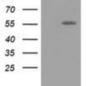 Western-Blot-LMAN1-Antibody-1E3-NBP2-03382-HEK293T-cells-were-transfected-with-the-pCMV6-ENTRY-control-Left-lane-or-pCMV6-ENTRY-LMAN1-Right-lane-cDNA-for-48-hrs-and-lysed-Equivalent-amount