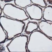 Immunohistochemistry-Paraffin-LMAN1-Antibody-1E3-NBP2-03382-Staining-of-paraffin-embedded-Human-thyroid-tissue-using-anti-LMAN1-mouse-monoclonal-antibody-