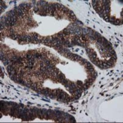 Immunohistochemistry-Paraffin-LMAN1-Antibody-1E3-NBP2-03382-Staining-of-paraffin-embedded-Carcinoma-of-Human-prostate-tissue-using-anti-LMAN1-mouse-monoclonal-antibody-