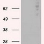 Western-Blot-B-Raf-Antibody-5A9-NBP1-47668-HEK293T-cells-were-transfected-with-the-pCMV6-ENTRY-control-Left-lane-or-pCMV6-ENTRY-B-Raf-Right-lane-cDNA-for-48-hrs-and-lysed-Equivalent-amount