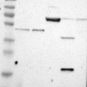 Western-Blot-B3GALNT2-Antibody-NBP1-82699-Lane-1-Marker-kDa-230-130-95-72-56-36-28-17-11-Lane-2-RT-4-Lane-3-U-251-MG-Lane-4-Human-Plasma-Lane-5-Liver-Lane-6-Tonsil