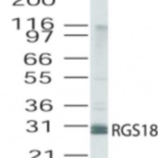 Western-Blot-RGS18-Antibody-NB100-56734-analysis-of-RGS18-in-human-lung-lysate-using-this-antibody-