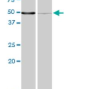Western-Blot-MPP1-Antibody-1C3-1D11-H00004354-M02-Western-blot-analysis-of-MPP1-over-expressed-293-cell-line-cotransfected-with-MPP1-Validated-Chimera-RNAi-or-non-transfected-control-Blot-pro