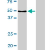 Western-Blot-MPP1-Antibody-1C3-1D11-H00004354-M02-Analysis-of-MPP1-expression-in-transfected-293T-cell-line-by-MPP1-monoclonal-antibody-M02-clone-1C3-1D11-Lane-1-MPP1-transfected-lysate-5