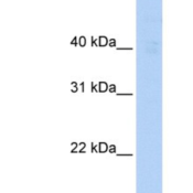 Western-Blot-RGS3-Antibody-NBP1-58312-Human-Heart-lysate-concentration-0-2-1-ug-ml-