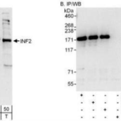 Western-Blot-INF2-Antibody-NBP1-79025-Whole-cell-lysate-from-HeLa-15-and-50-mcg-for-WB-1-mg-for-IP-20-of-IP-loaded-and-293T-T-50-mcg-cells-Antibodies-Affinity-purified-rabbit-anti-INF2
