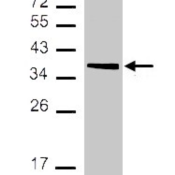 Western-Blot-MDH2-Antibody-NBP1-32259-Sample-30-ug-of-whole-cell-lysate-A-293T-12-SDS-PAGE-antibody-diluted-at-1-1000-
