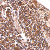 Immunohistochemistry-Paraffin-MDH2-Antibody-NBP1-32259-Paraffin-embedded-OVCA-xenograft-using-antibody-at-1-500-dilution-