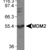 Western-Blot-MDM2-Antibody-NBP1-02158-Detection-of-MDM2-in-human-liver-protein-using-NBP1-02158-