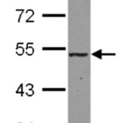 Western-Blot-MAT2A-Antibody-NBP2-17229-Sample-30-ug-of-whole-cell-lysate-A-293T-10-SDS-PAGE-gel-diluted-at-1-1000-