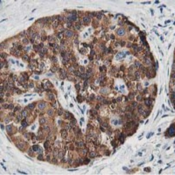 Immunohistochemistry-Paraffin-LCMT1-Antibody-4A5-NBP2-00933-Staining-of-paraffin-embedded-Carcinoma-of-Human-pancreas-tissue-using-anti-LCMT1-mouse-monoclonal-antibody-