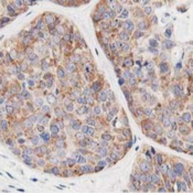 Immunohistochemistry-Paraffin-LCMT1-Antibody-4A5-NBP2-00933-Staining-of-paraffin-embedded-Adenocarcinoma-of-Human-breast-tissue-using-anti-LCMT1-mouse-monoclonal-antibody-