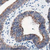 Immunohistochemistry-Paraffin-LCMT1-Antibody-4A5-NBP2-00933-Staining-of-paraffin-embedded-Adenocarcinoma-of-Human-endometrium-tissue-using-anti-LCMT1-mouse-monoclonal-antibody-