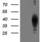 Western-Blot-LCMT1-Antibody-4A5-NBP2-00933-HEK293T-cells-were-transfected-with-the-pCMV6-ENTRY-control-Left-lane-or-pCMV6-ENTRY-LCMT1-Right-lane-cDNA-for-48-hrs-and-lysed-Equivalent-amount